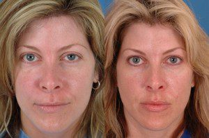 Injectable Fillers Before and After Patient