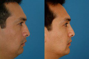 Chin Reshaping Before and After Interior Image