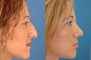 Rhinoplasty Before and After Patient