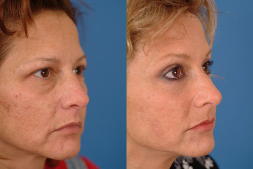 Midface Lift Before and After Interior Image