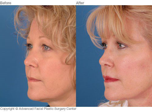 Minimally Invasive Facial Surgery Before and After Interior Image