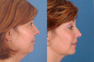 Neck-Liposuction