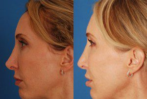 Revision Rhinoplasty Before and After Interior Image