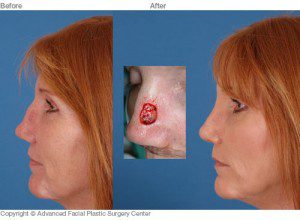 Skin-Cancer-Reconstruction