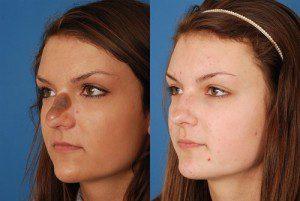 Skin-Lesion-Removal
