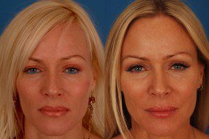 Botox Before and After Patient