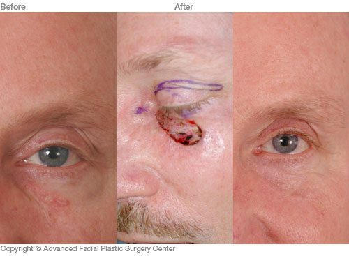 Skin Cancer Reconstruction Results Dr Benjamin Bassichis