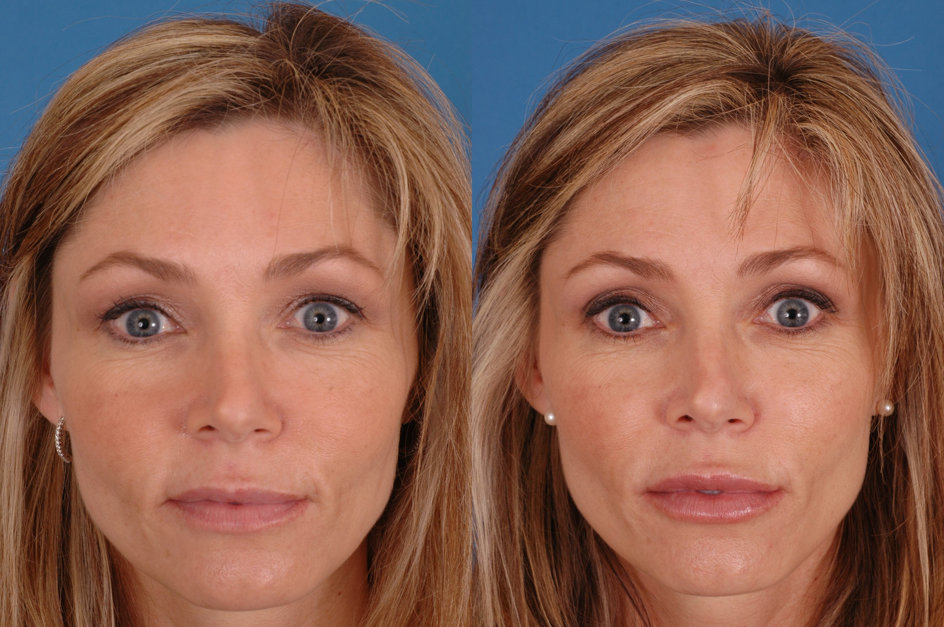 facial-exercise-before-and-after-photos-girls-hot