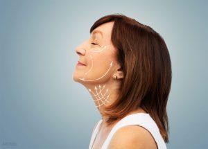 Left Profile Older Female Showing Potential Lift Lines On Face