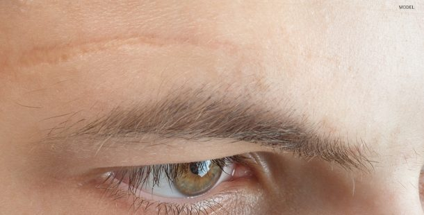 Close Up of Scar Above a Male Model's Eye