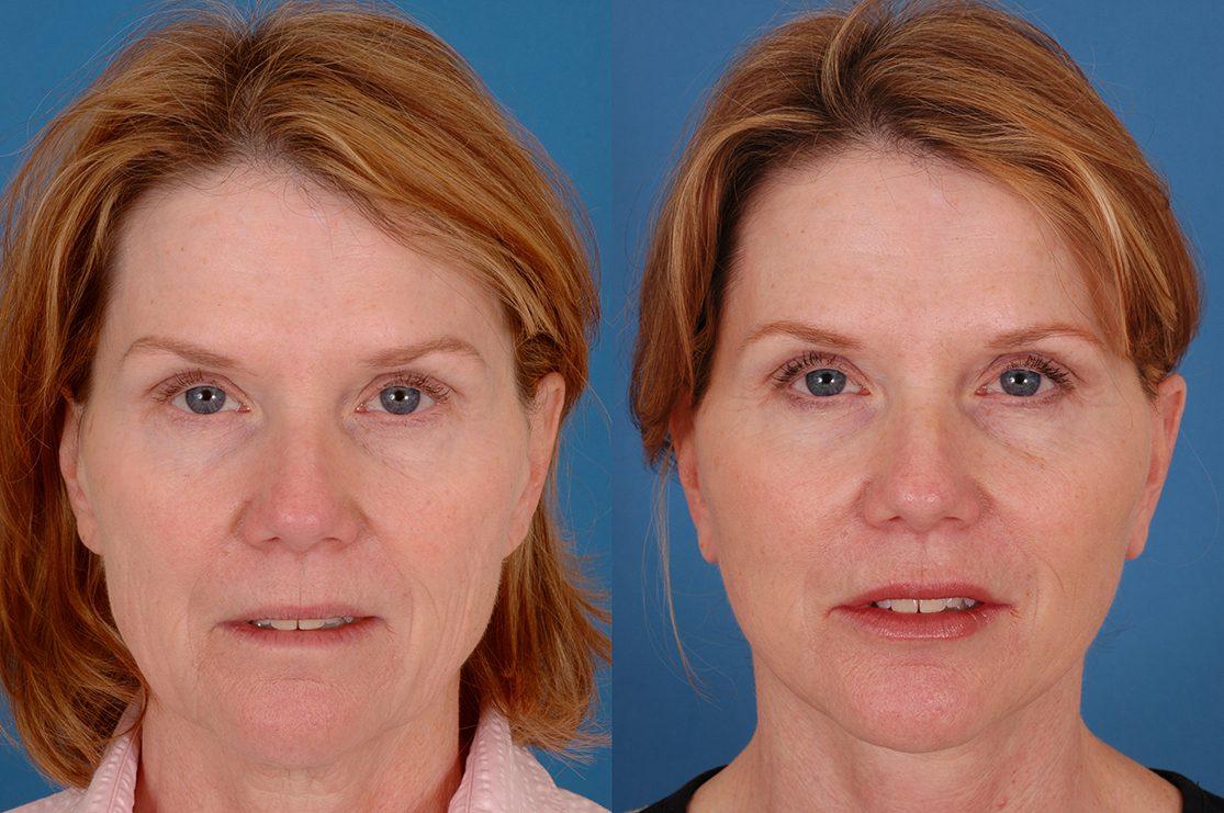 Facial plastic surgery in atlanat georgia
