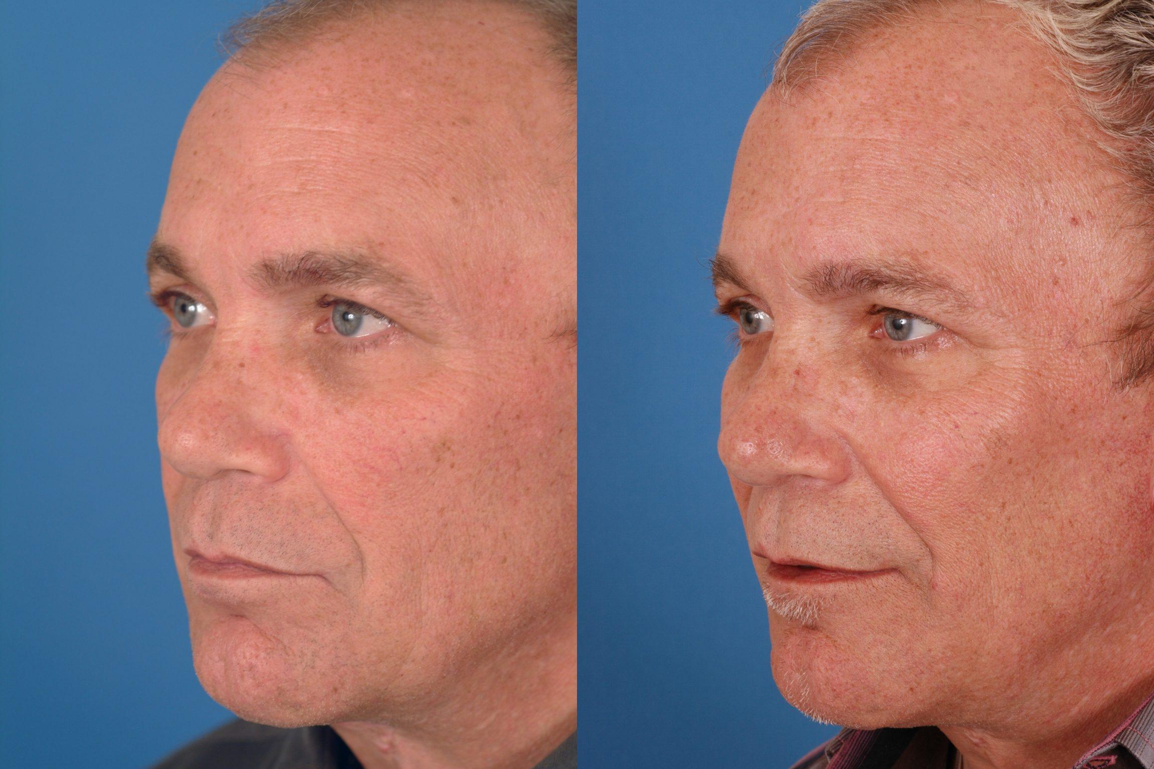 Advanced Facial Plastic Surgery Center 40