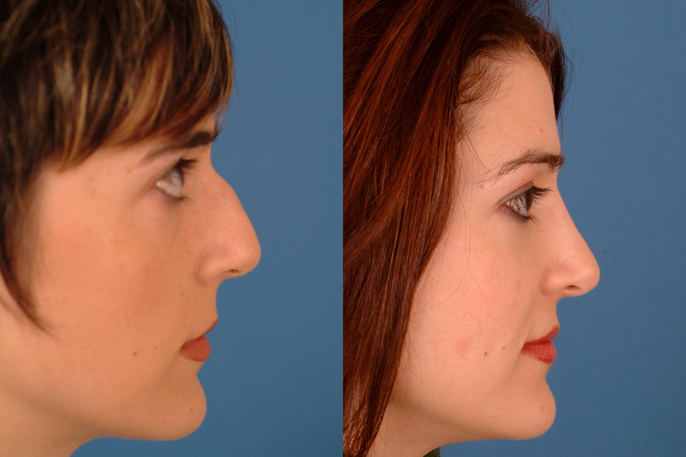 Schenectady Facial Reconstructive Surgery