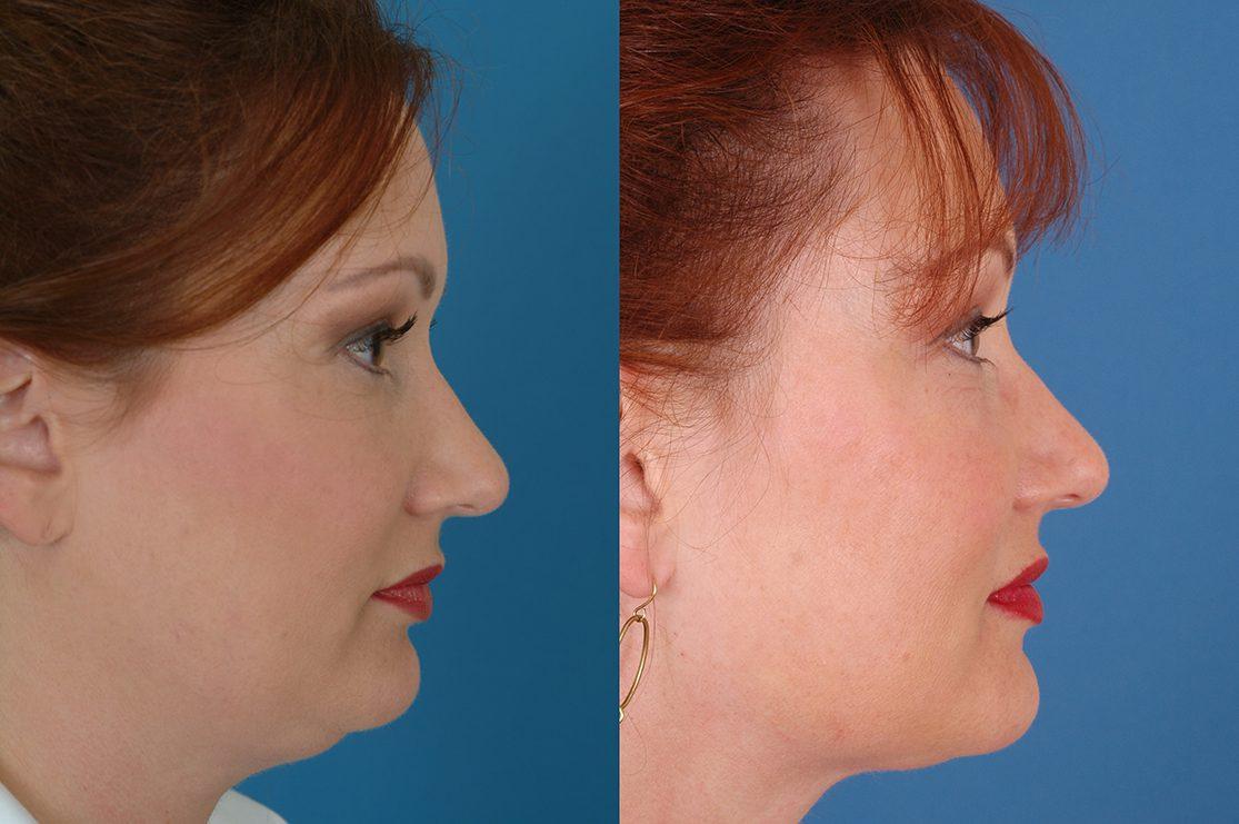 Neck Liposuction Dallas Advanced Facial Plastic Surgery