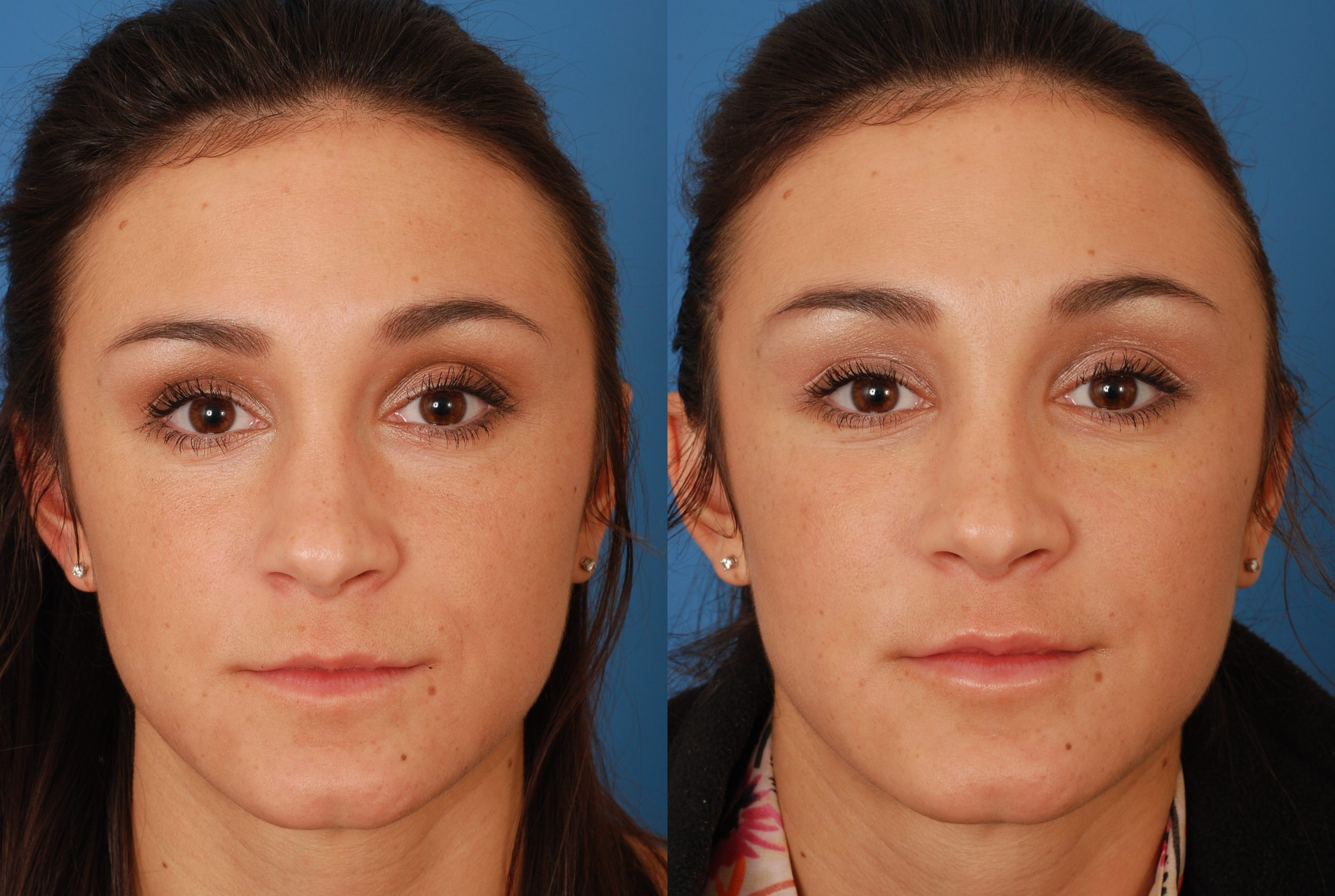 Advanced facial plastic surgery center