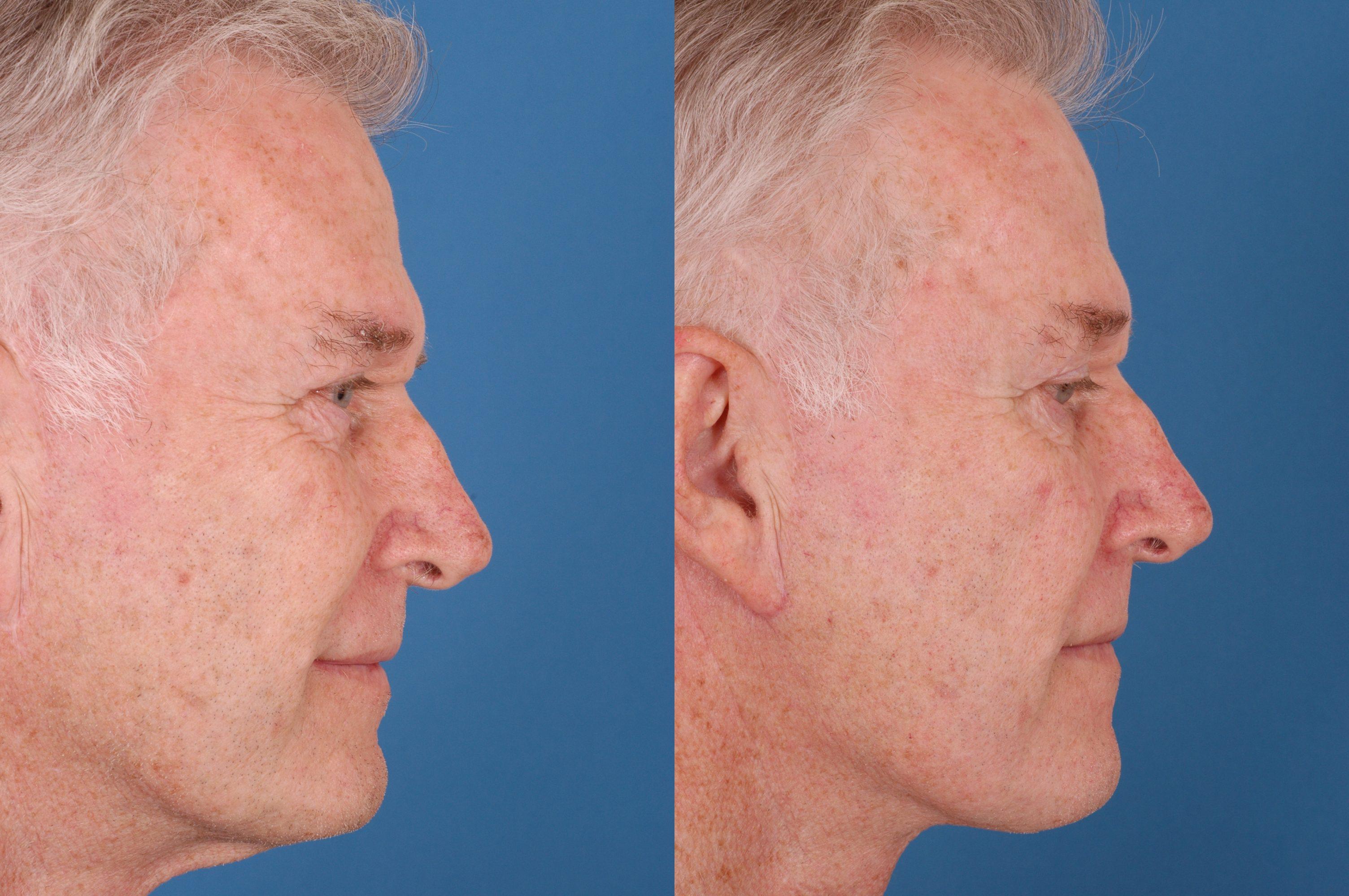 Advanced Facial Plastic Surgery Center 23